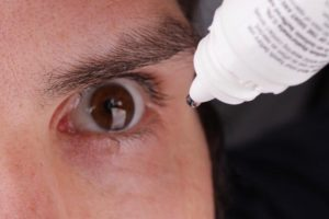 eye injuries picture